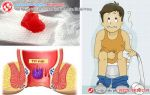 Những vấn đề quan trọng về bệnh trĩ nội