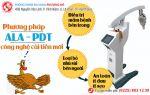 Hỗ trợ chữa sùi mào gà bằng công nghệ cải tiến mới – Phương pháp ALA – PDT