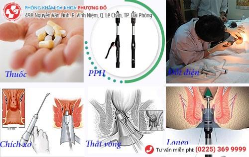 pp chữa bệnh trĩ nội