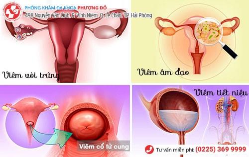 viêm nhiễm sinh dục nữ