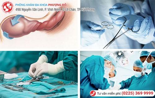 Phẫu thuật xoắn tinh hoàn