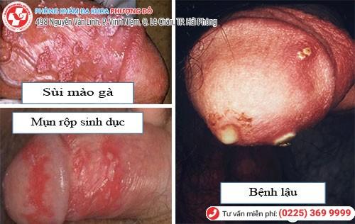Nguyên nhân gây đau vùng kín