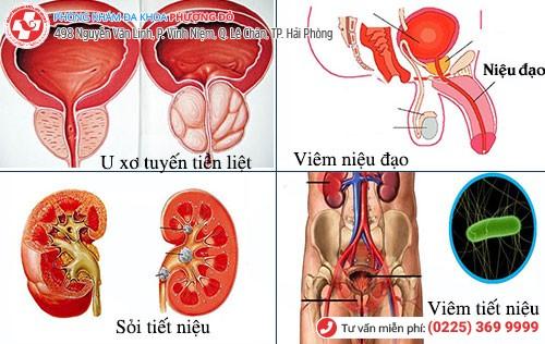 Nguyên nhân tiểu ra máu ở nam